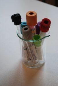 Ketogenic ratio - lab testing