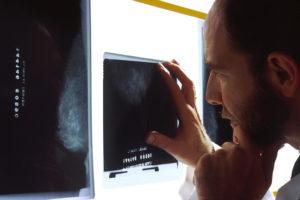 National Cancer Institute - Bill Branson (photo)