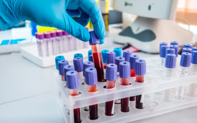 blood sugar test heads up health
